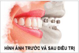 Nha khoa niềng răng mặt lưỡi