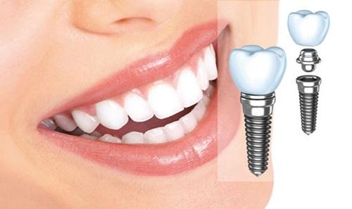 Kinh nghiệm làm răng implant - Top 3 kinh nghiệm bổ ích 1