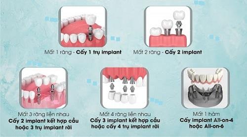 Kinh nghiệm làm răng implant - Top 3 kinh nghiệm bổ ích 2