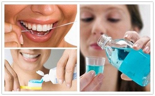 Kinh nghiệm làm răng implant - Top 3 kinh nghiệm bổ ích 4